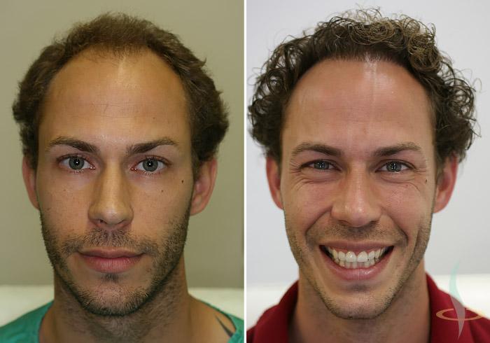A la izquierda: antes / a la derecha: después de la segunda operación