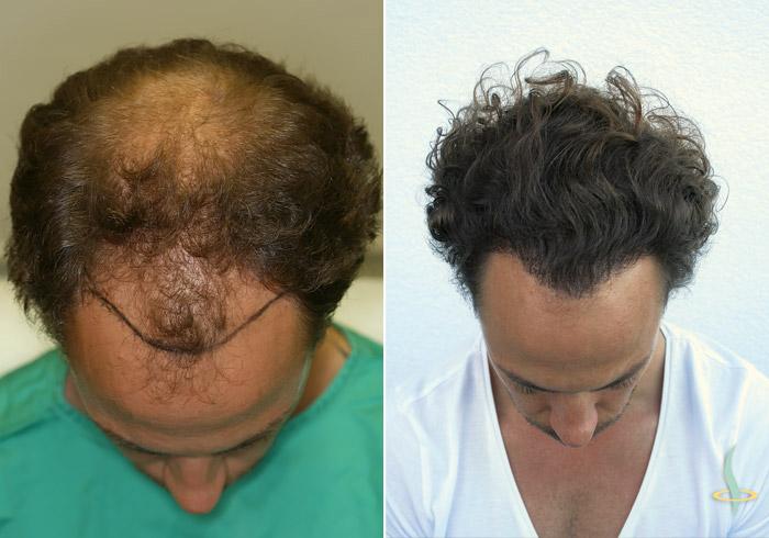 A la izquierda: antes / a la derecha: después de la tercera operación