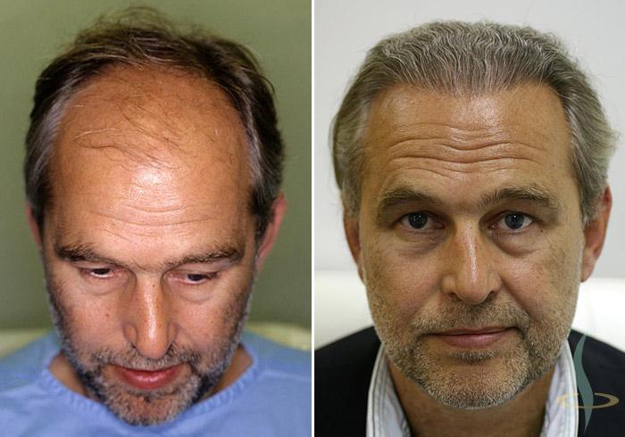 A la izquierda: antes / a la derecha: 8 meses después de la 3.ª operación (2800 injertos en total)