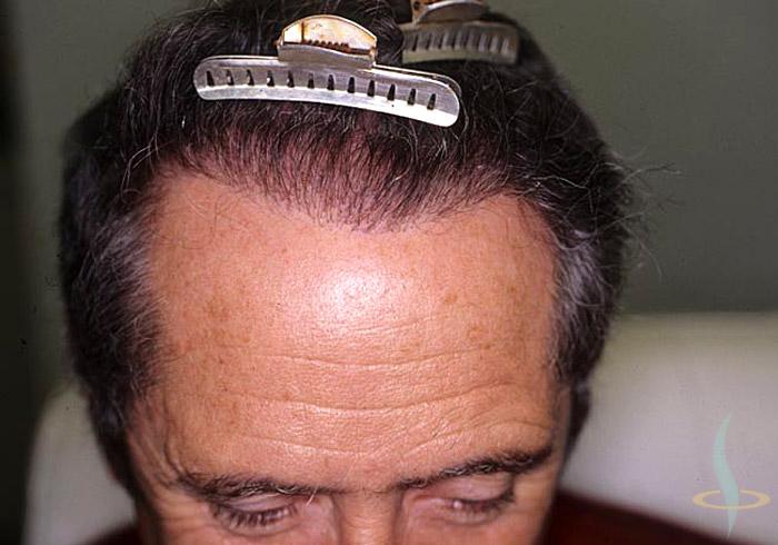 Nacimiento del pelo