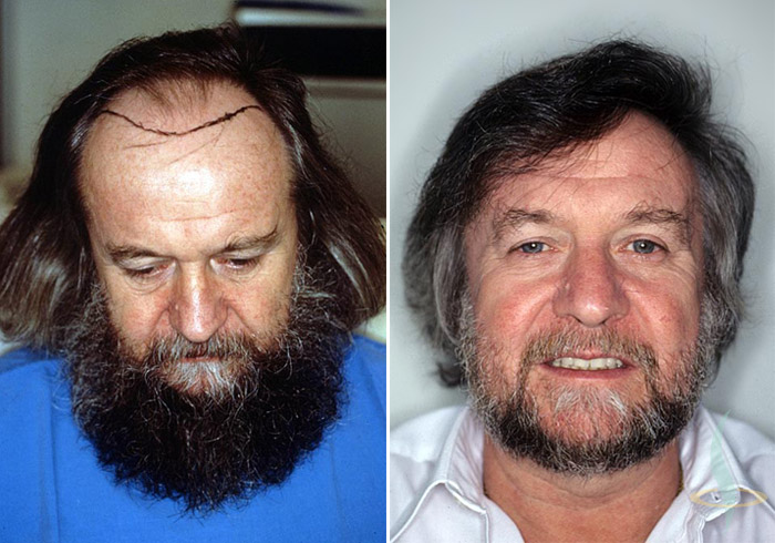 A la izquierda: antes / a la derecha: 1,5 años de la segunda operación