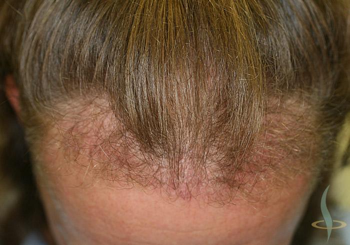 Nacimiento del pelo tras la 1.ª operación