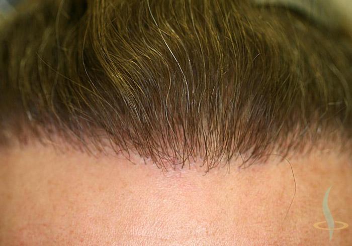 Nacimiento del pelo tras la 2.ª operación